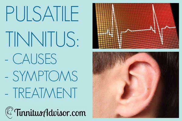 pulsatile tinnitus causes and treatment