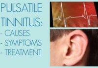Pulsatile Tinnitus Causes